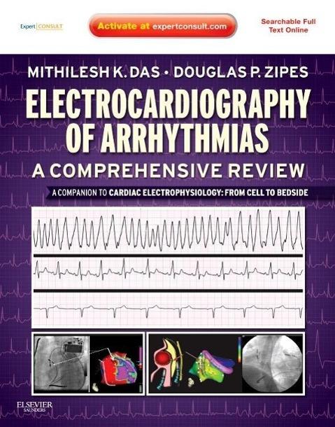 Electrocardiography of Arrhythmias: A Comprehensive Review als Buch von Mithilesh Kumar Das, Douglas P. Zipes