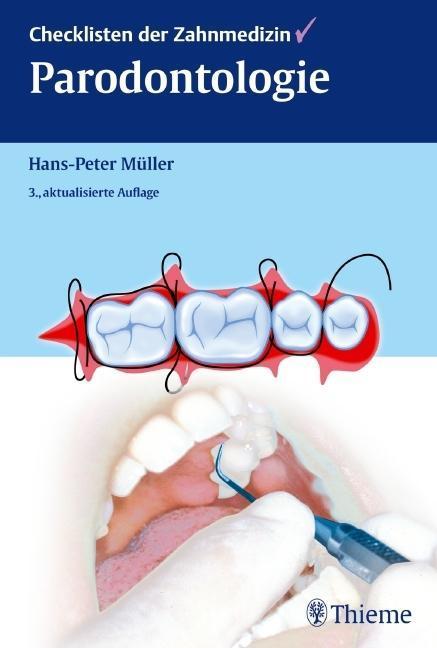 Checklisten der Zahnmedizin Parodontologie als Buch von Hans-Peter Müller