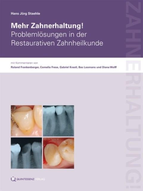 Mehr Zahnerhaltung! als Buch von Hans Jörg Staehle