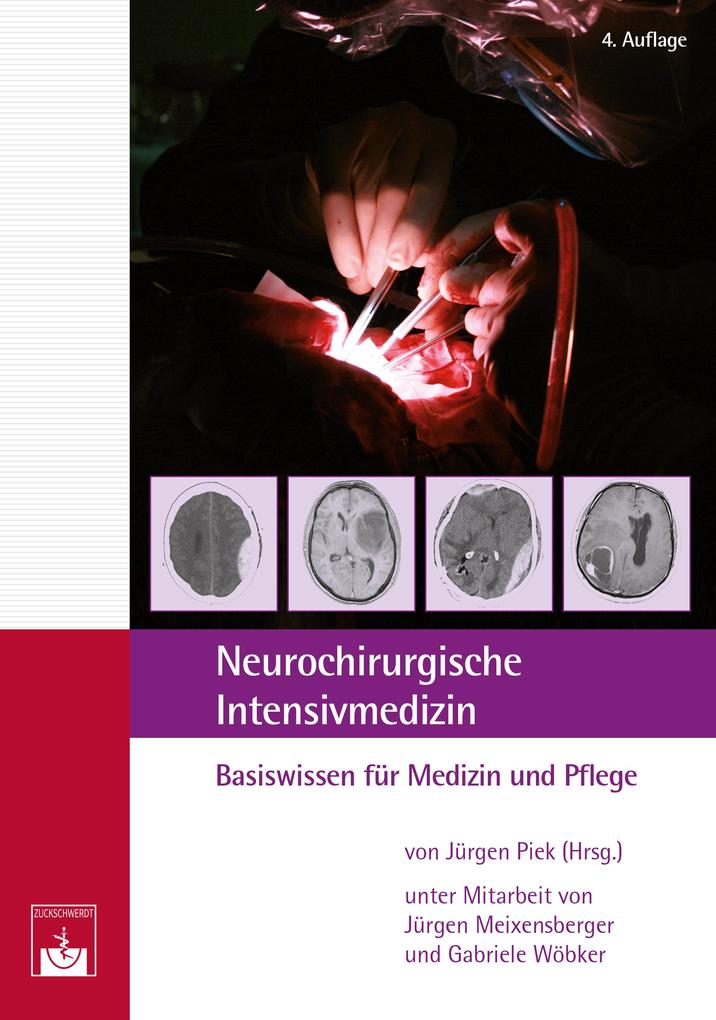 Neurochirurgische ´Intensivmedizin als eBook vo...