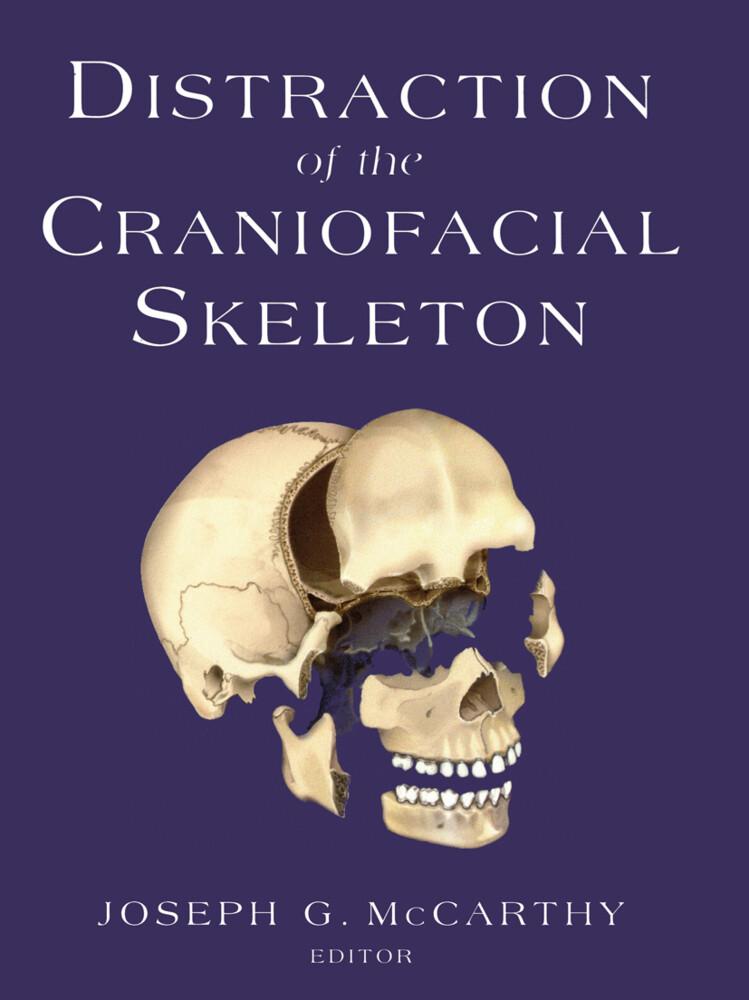 Distraction of the Craniofacial Skeleton als Buch