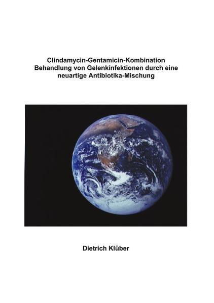Clindamycin-Gentamicin-Kombination als Buch