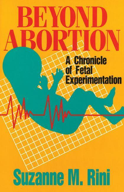 Beyond Abortion: A Chronicle of Fetal Experimentation als Taschenbuch