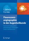 Fluoreszenzangiographie in der Augenheilkunde