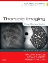 Thoracic Imaging: Case Review Series
