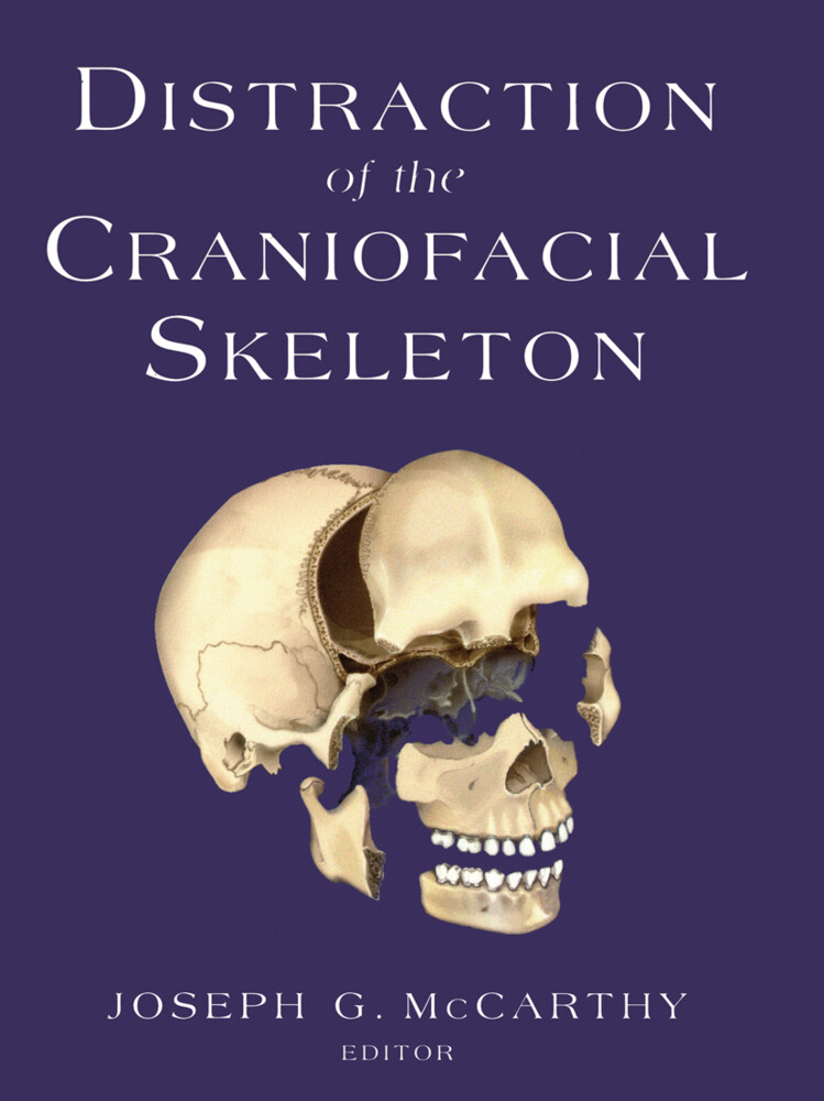 Distraction of the Craniofacial Skeleton als Buch