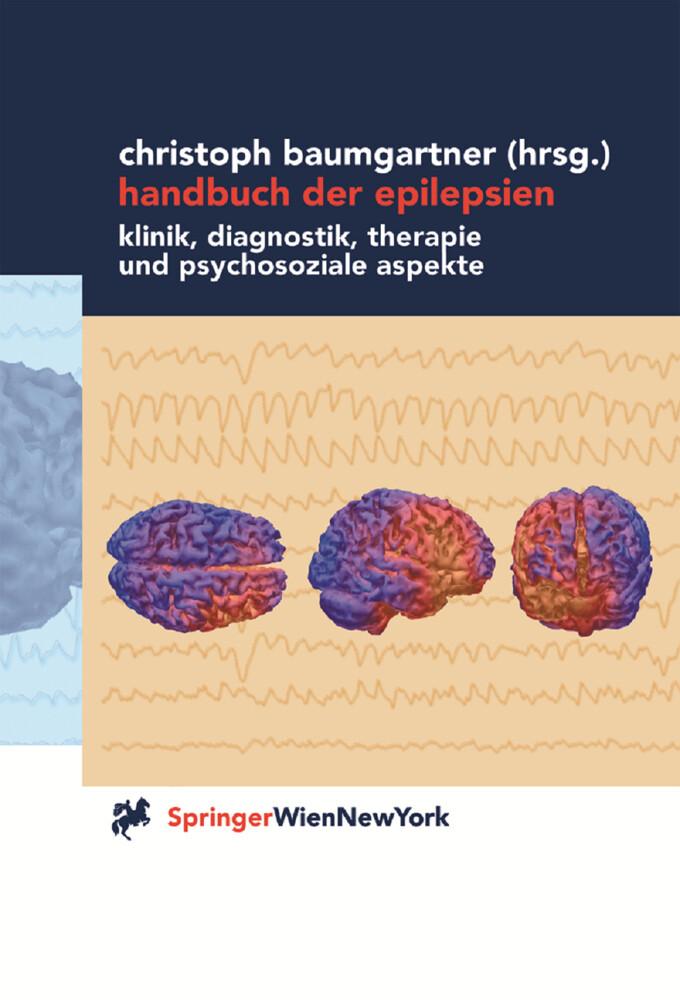 Handbuch der Epilepsien als Buch