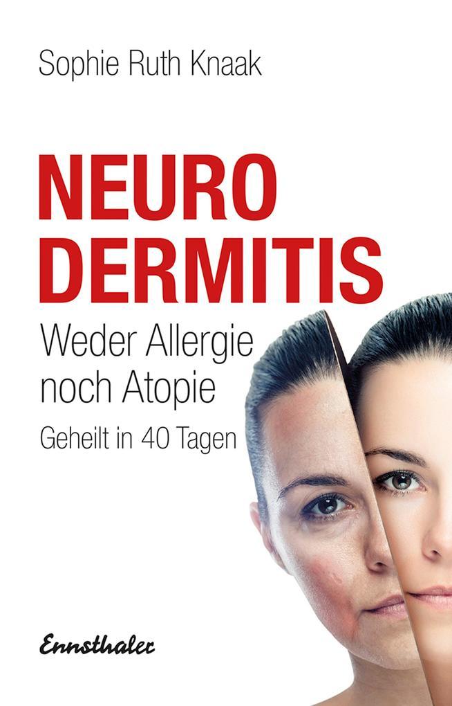 Neurodermitis als Buch