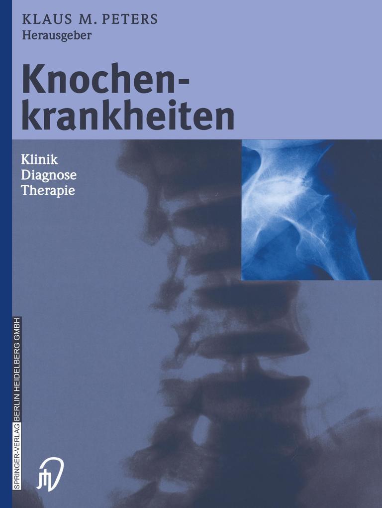 Knochenkrankheiten als Buch