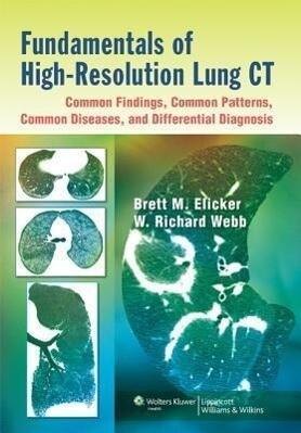 Fundamentals of High-resolution Lung CT als Buch von Brett M. Elicker, W. Richard Webb