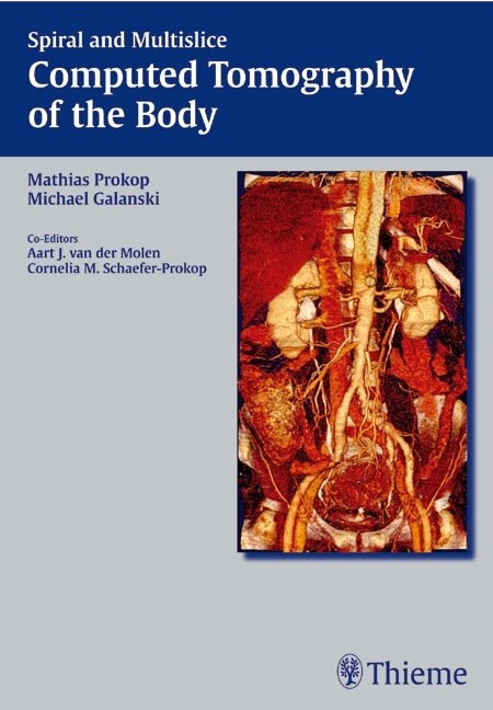 Spiral and Multislice Computed Tomography of the Body als Buch