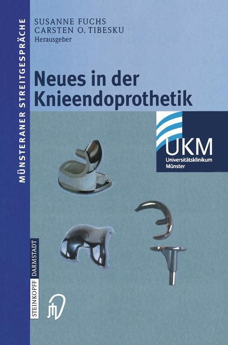 Neues in der Knieendoprothetik als Buch
