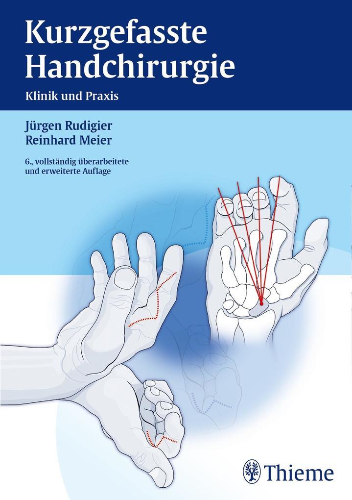 Reinhard Meier, Jürgen Rudigier: Kurzgefasste Handchirurgie (eBook ...