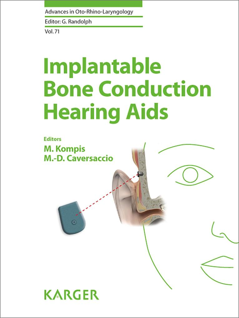 Implantable Bone Conduction Hearing Aids als eBook von