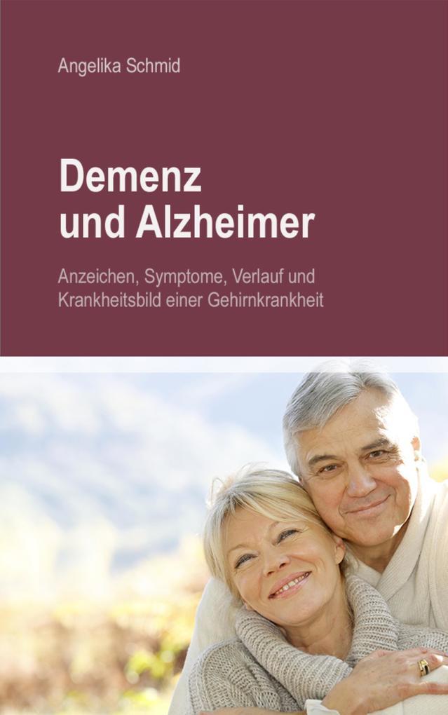 Demenz & Alzheimer - Anzeichen, Symptome, Verlauf und Krankheitsbild einer Gehirnkrankheit als eBook