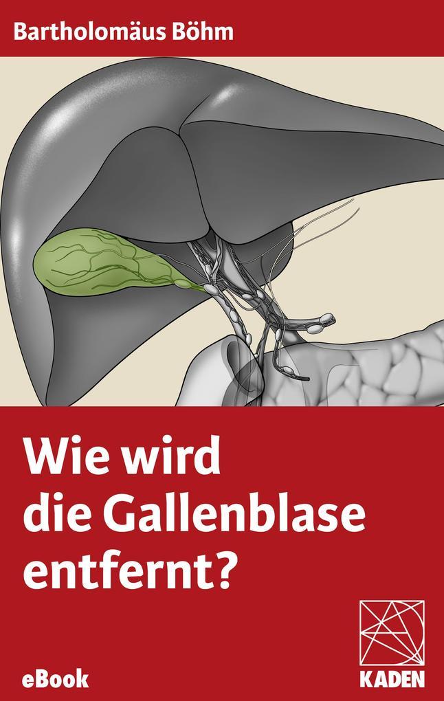 Wie wird die Gallenblase entfernt? als eBook
