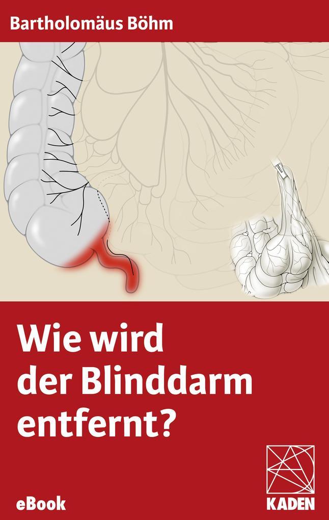 Wie wird der Blinddarm entfernt? als eBook