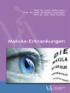 Makulaerkrankungen