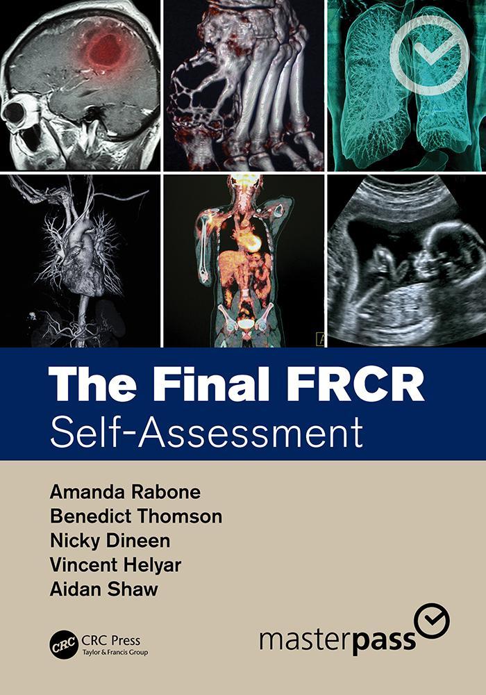 The Final FRCR als eBook epub
