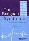 The Brugada Syndrome: Diagnosis and Treatment