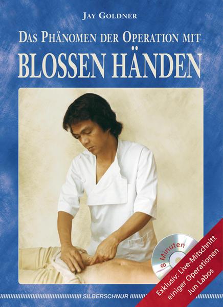 Das Phänomen der Operation mit blossen Händen a...
